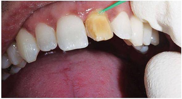 Стоматология в Калуге — воспаление корня зуба под коронкой