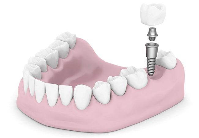 Имплантация зубов по современным технологиям