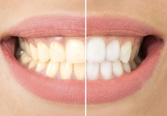 Красивые и здоровые зубы. Стоматология в Германии